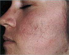 trattamenti cicatrici acne parma