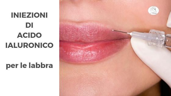 iniezioni acido ialuronico labbra a parma