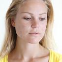 dermatologo parma acne