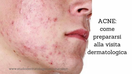guida estetica acne parma